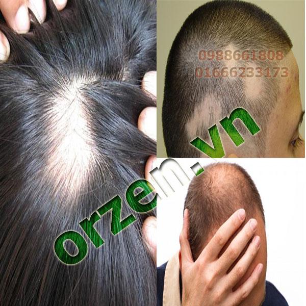 Triệu chứng tóc rụng nhiều và rụng từng mảnh