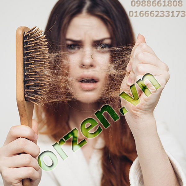 Rụng tóc ảnh hưởng đến sức khỏe và thẩm mĩ.