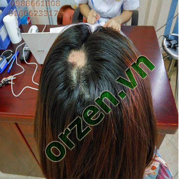 Triệu chứng nhận biết mắc bệnh rụng tóc từng mảng.